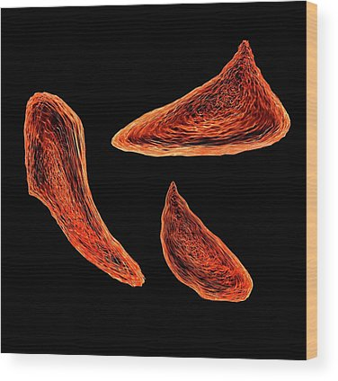 Hematology Wood Prints
