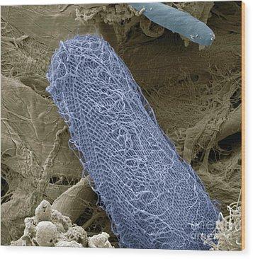 Ciliate Protozoan Sem Wood Print by Steve Gschmeissner