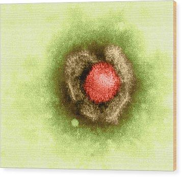 Herpes Simplex Virus Wood Print by Kwangshin Kim