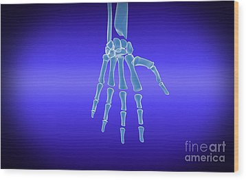 X-ray View Of Human Hand Wood Print by Stocktrek Images