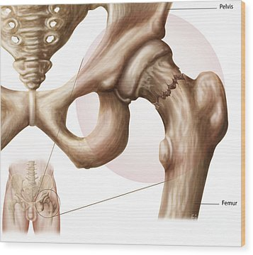 Anatomy Of Hip Fracture Wood Print by Stocktrek Images