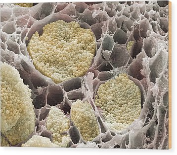 Cabbage Root Infection, Sem Wood Print by Power And Syred
