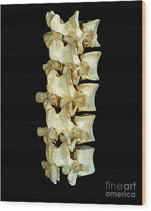 Lumbar Vertebrae Wood Print by VideoSurgery
