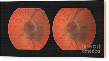 Melanoma Of The Optic Nerve Stereo Image Wood Print by Paul Whitten