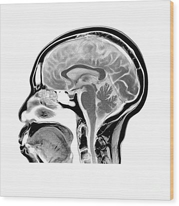 Sagittal Mri Of The Brain Wood Print by Medical Body Scans