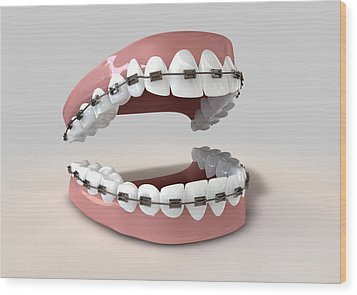 Teeth Fitted With Braces Wood Print by Allan Swart