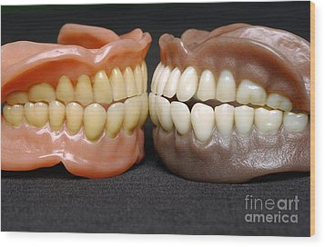 Two Sets Of Dentures Wood Print by Medicimage