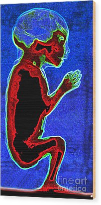 Unborn Fetus Wood Print by Howard Koby