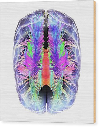 White Matter Fibres And Brain Wood Print by Alfred Pasieka