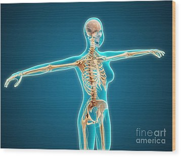 X-ray View Of Female Body Showing Wood Print by Stocktrek Images