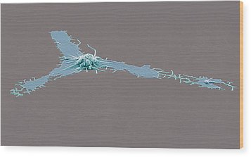 Activated Platelet, Sem Wood Print by Steve Gschmeissner