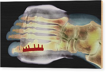 Big Toe After Bunion Surgery, X-ray Wood Print by