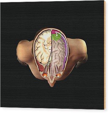 Brain And Vision, Artwork Wood Print by Henning Dalhoff