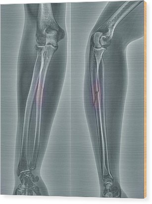 Broken Arm, X-ray Wood Print by Zephyr