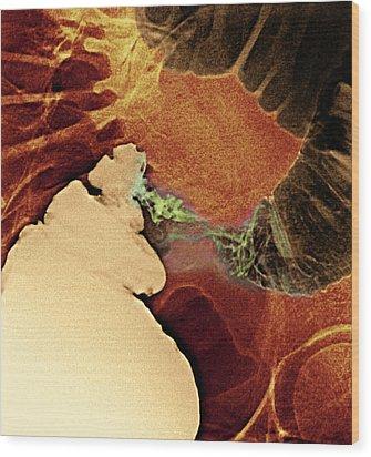 Colon Cancer, X-ray Wood Print by Du Cane Medical Imaging Ltd