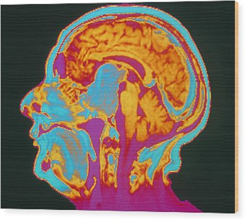 Coloured Mri Brain Scan Of A Pituitary Tumour Wood Print by Mehau Kulyk