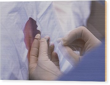 Doctor Inserts Catheter For Epidural Anaesthetic Wood Print by David Nunuk