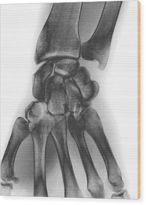 Normal Wrist, X-ray Wood Print by Zephyr