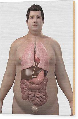 Obese Man's Organs, Artwork Wood Print by Sciepro