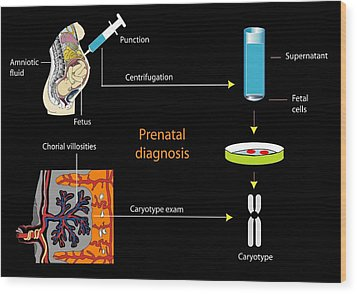 Prenatal Screening, Artwork Wood Print by Francis Leroy, Biocosmos