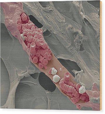 Ruptured Venule, Sem Wood Print by Steve Gschmeissner
