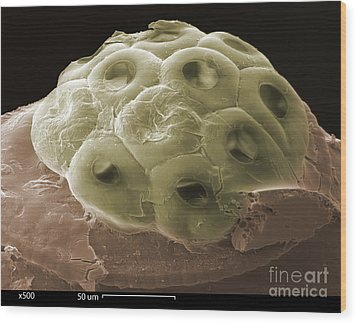 Sem Of A Head Lice Eggs Wood Print by Ted Kinsman