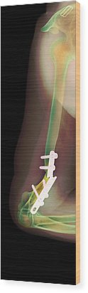 Snapped Plate On Broken Arm, X-ray Wood Print by