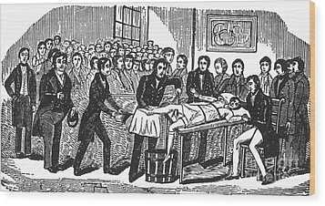 Surgery Without Anesthesia, Pre-1840s Wood Print by Science Source