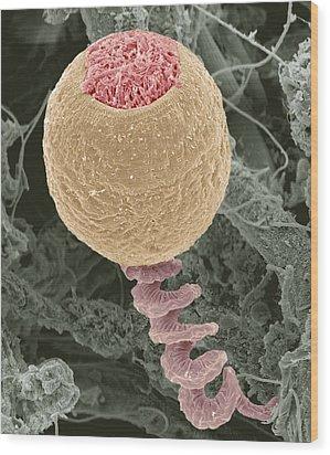 Vorticella Protozoan, Sem Wood Print by Steve Gschmeissner