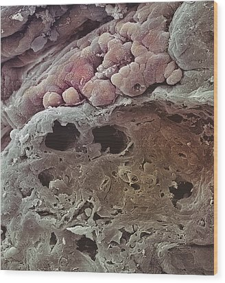 Colon Cancer, Sem Wood Print by Steve Gschmeissner