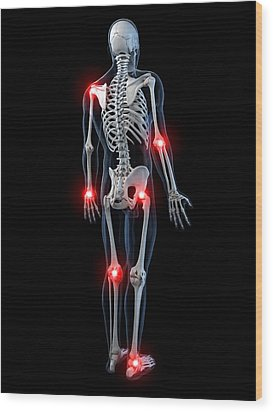 Joint Pain, Conceptual Artwork Wood Print by Sciepro