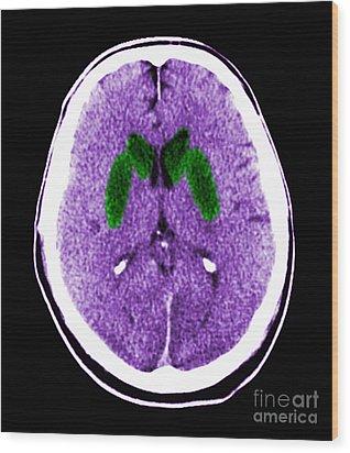 Brain Of A Cardiac Arrest Victim Wood Print by Medical Body Scans