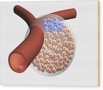 Cancer Stem Cells And Capillary, Artwork Wood Print by Laguna Design