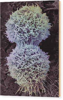 Dividing Cervical Cancer Cell, Sem Wood Print by Steve Gschmeissner