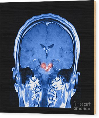 Mri Brainstem Cavernous Malformations Wood Print by Medical Body Scans