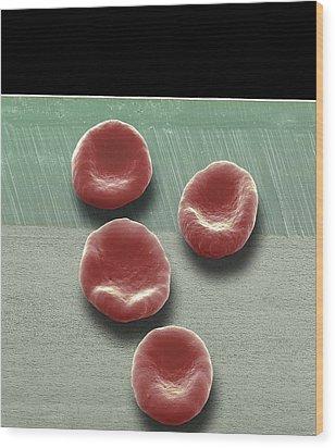 Red Blood Cells, Sem Wood Print by Steve Gschmeissner