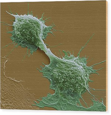 Dividing Cancer Cells, Sem Wood Print by Steve Gschmeissner