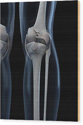 Knee Anatomy, Artwork Wood Print by Sciepro