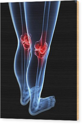 Knee Pain, Conceptual Artwork Wood Print by Sciepro
