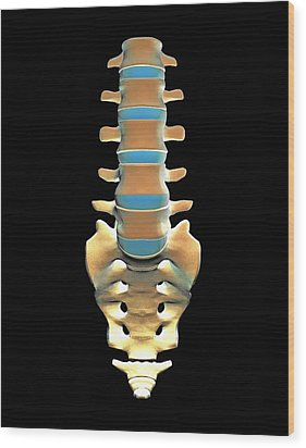 Lumbar Spine And Sacrum, Computer Artwork Wood Print by Pasieka