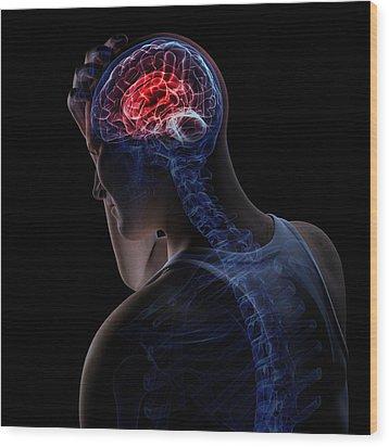 Headache, Conceptual Artwork Wood Print by Sciepro