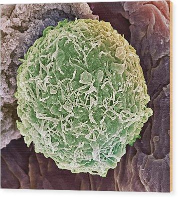 Cervical Cancer Cell, Sem Wood Print by Steve Gschmeissner