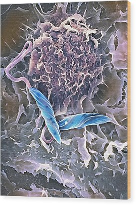 Macrophage Attacking A Foreign Body, Sem Wood Print by