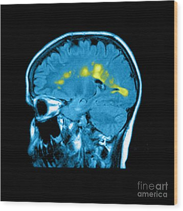 Mri Of Multiple Sclerosis Wood Print by Medical Body Scans