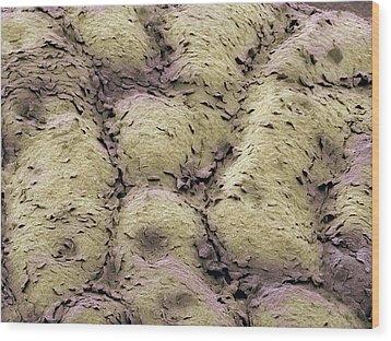Skin Surface, Sem Wood Print by Steve Gschmeissner