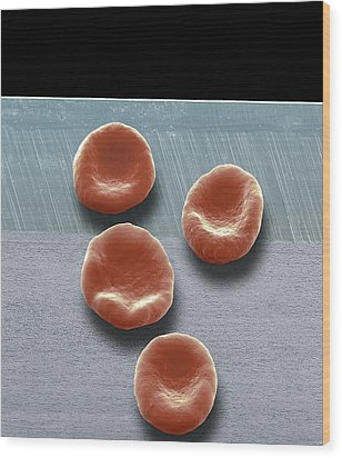 Red Blood Cells, Sem Wood Print by Steve Gschmeissner
