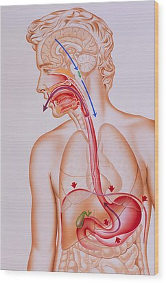 Artwork Of Vomiting Mechanism In Human Body Wood Print by John Bavosi
