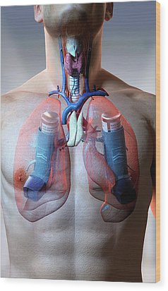 Asthma Wood Print by MedicalRF.com