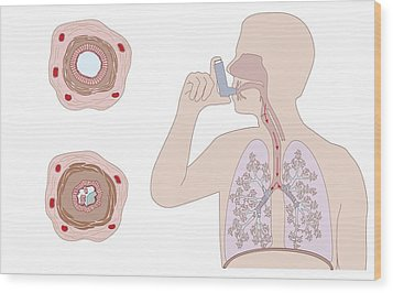 Asthma Pathology And Treatment, Diagram Wood Print by Peter Gardiner