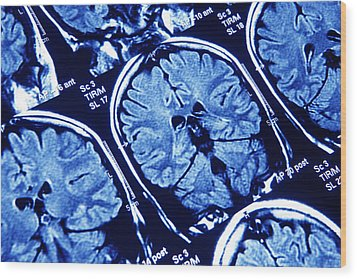 Brain Scans, Mri Scans Wood Print by Pasieka